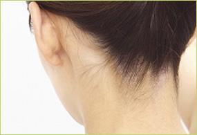首の症状についてのイメージ